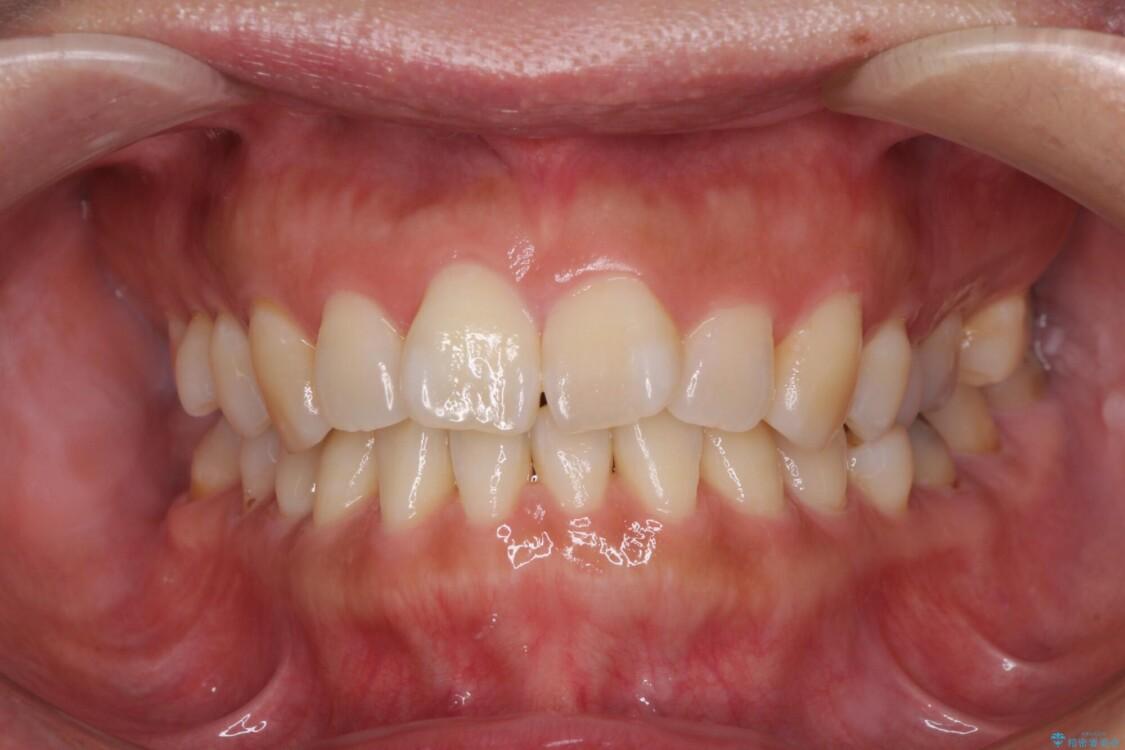 軽度な歯列不正 インビザライン・ライトによる矯正治療 ビフォー