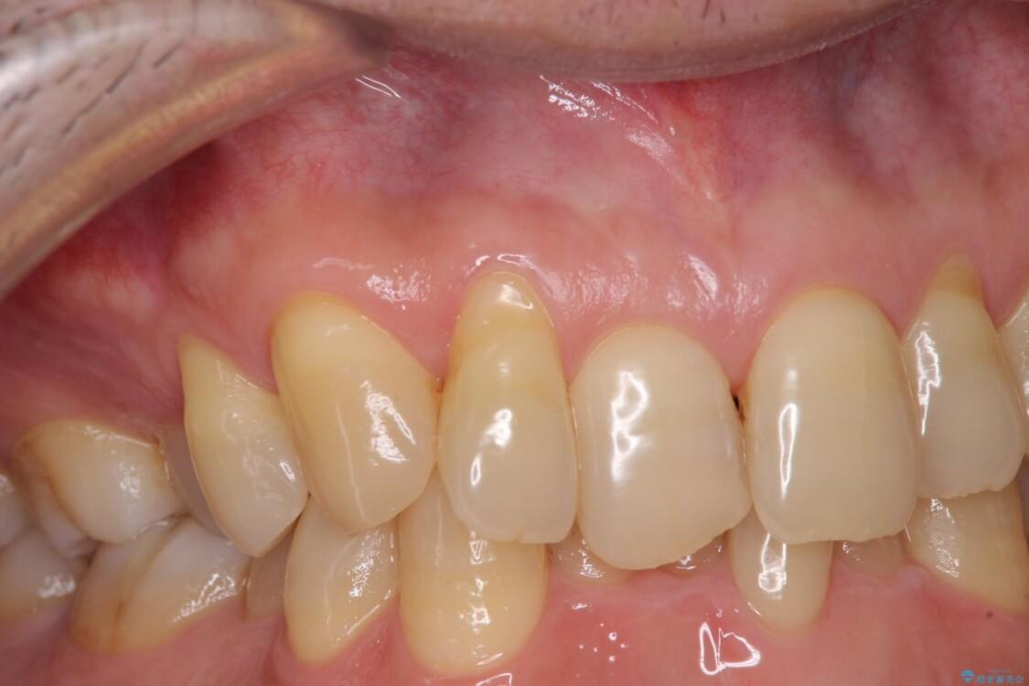 歯根が露出している歯の歯肉移植 根面被覆術 ビフォー