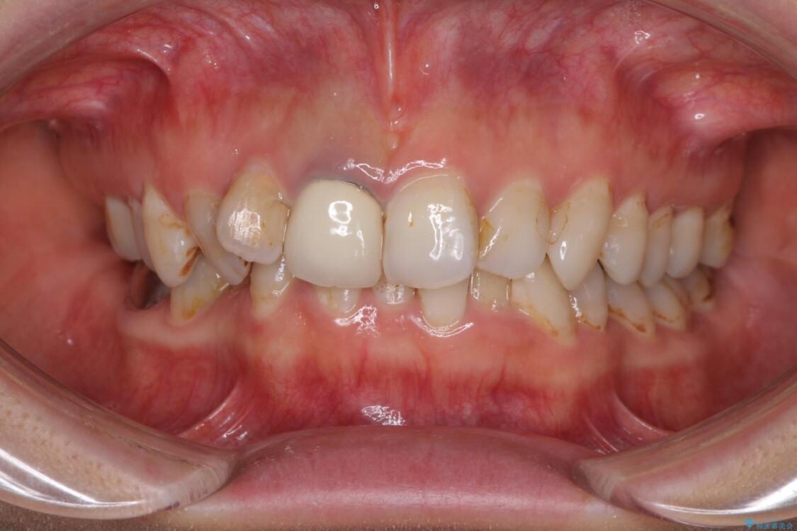 歯並びと目立つ金属を治したい 総合歯科治療 ビフォー
