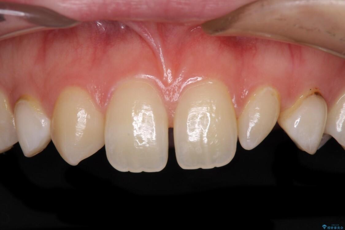 前歯の奇形歯 オールセラミッククラウンによる審美歯科治療 ビフォー