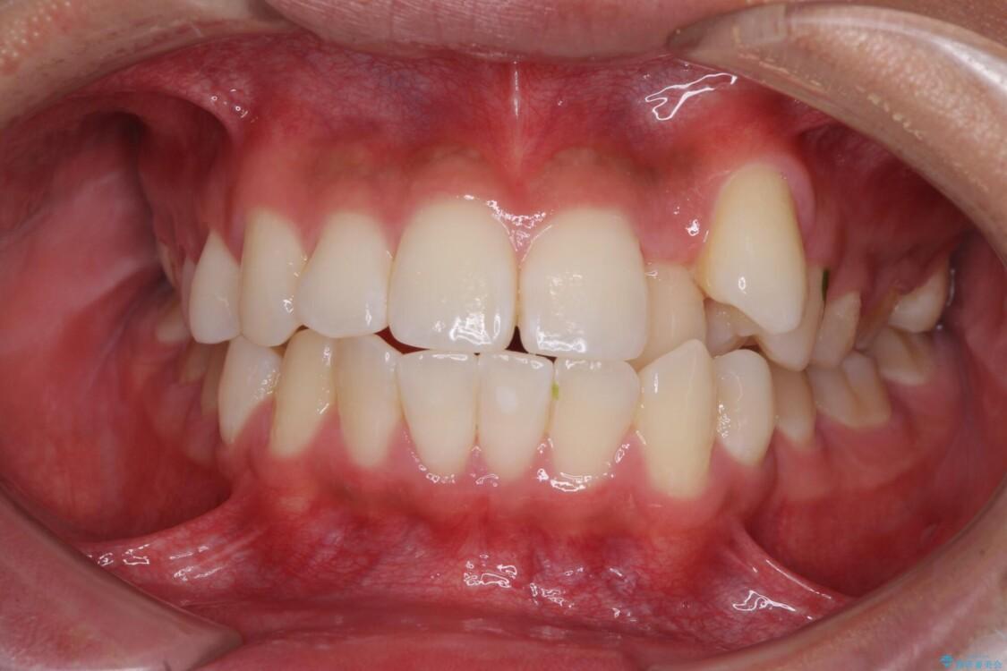 八重歯と奥歯のクロスバイト 上顎骨を拡大してインビザラインで矯正 ビフォー