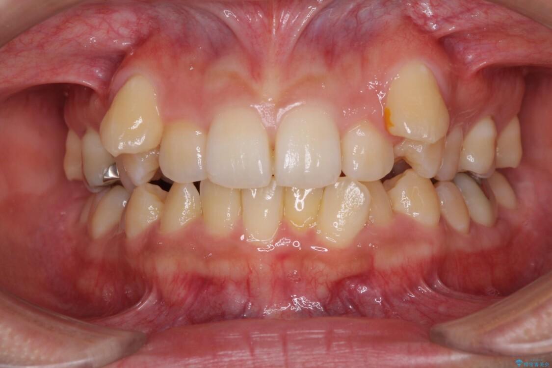 八重歯の抜歯矯正 補助装置を用いたインビザライン矯正 ビフォー