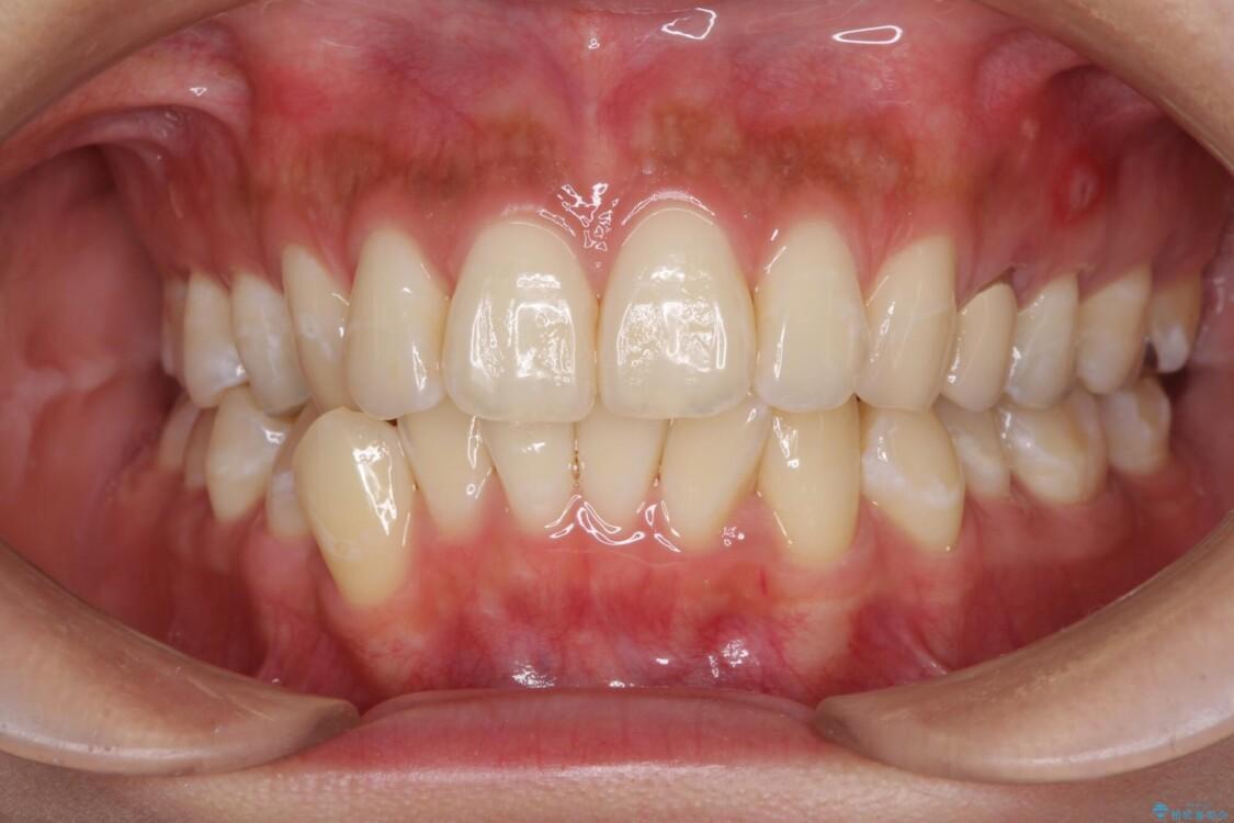八重歯の再矯正 インビザラインでストレスなく矯正治療 ビフォー