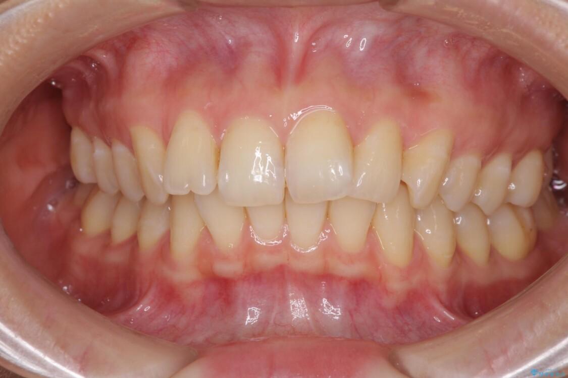 インビザラインによる矯正治療 カリエールディスタライザーを用いた奥歯の咬み合わせ改善 ビフォー