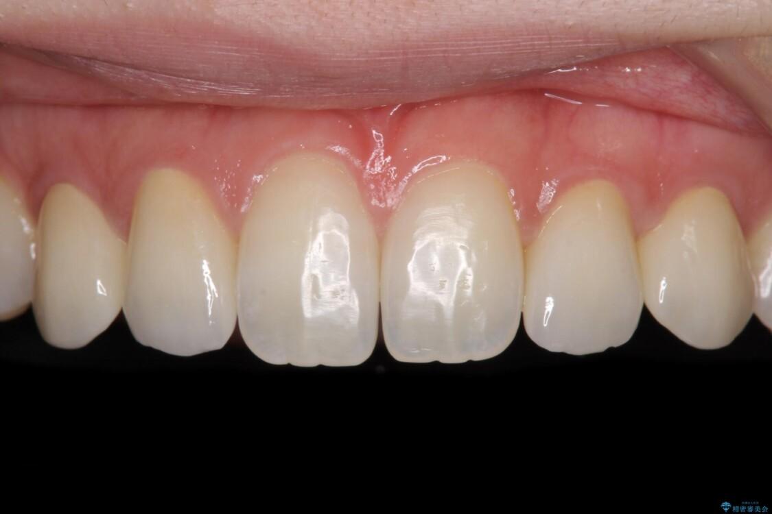 前歯の奇形歯 オールセラミッククラウンによる審美歯科治療 アフター