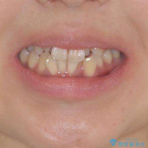 狭い上顎骨を拡大 著しい叢生を抜歯矯正で改善 ビフォー
