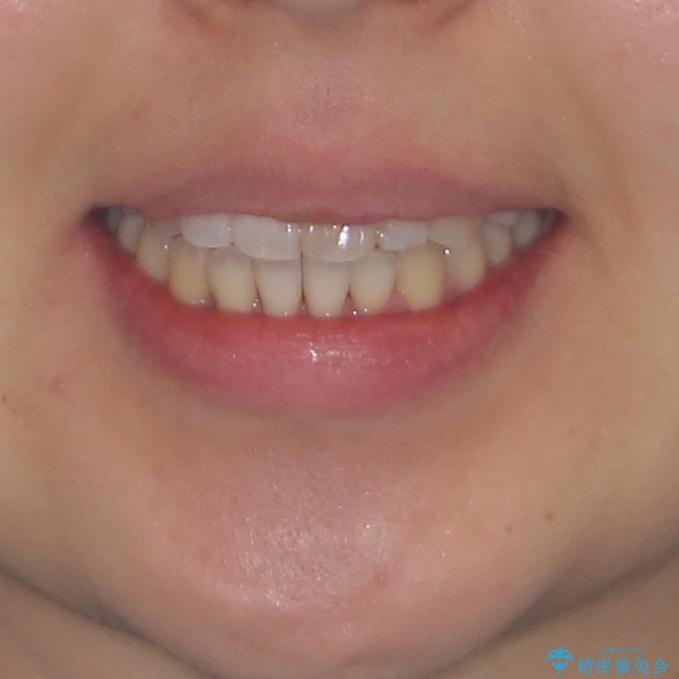 狭い上顎骨を拡大 著しい叢生を抜歯矯正で改善 アフター