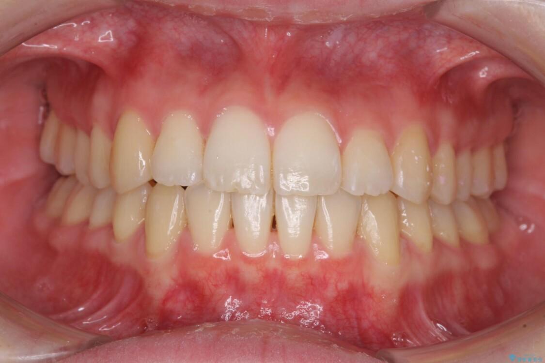 前歯の微妙なガタつきが気になる インビザライン・ライトでの矯正治療 アフター