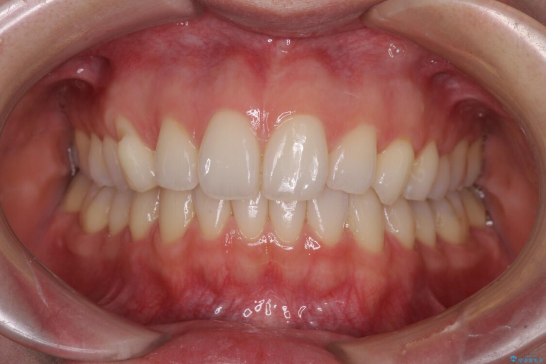 狭い上顎骨を拡大 急速拡大装置を併用したインビザライン矯正 アフター