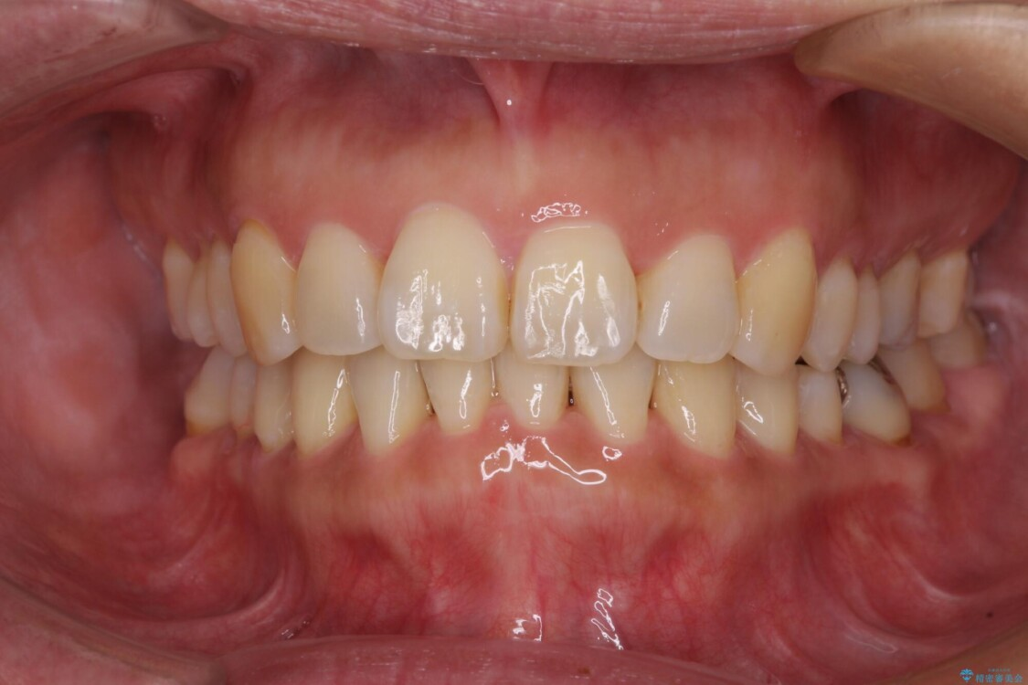 軽度な歯列不正 インビザライン・ライトによる矯正治療 アフター