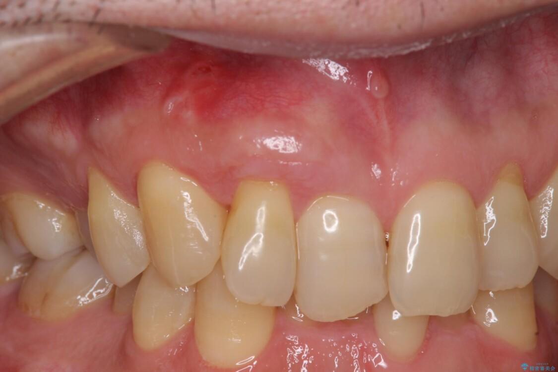 歯根が露出している歯の歯肉移植 根面被覆術 アフター