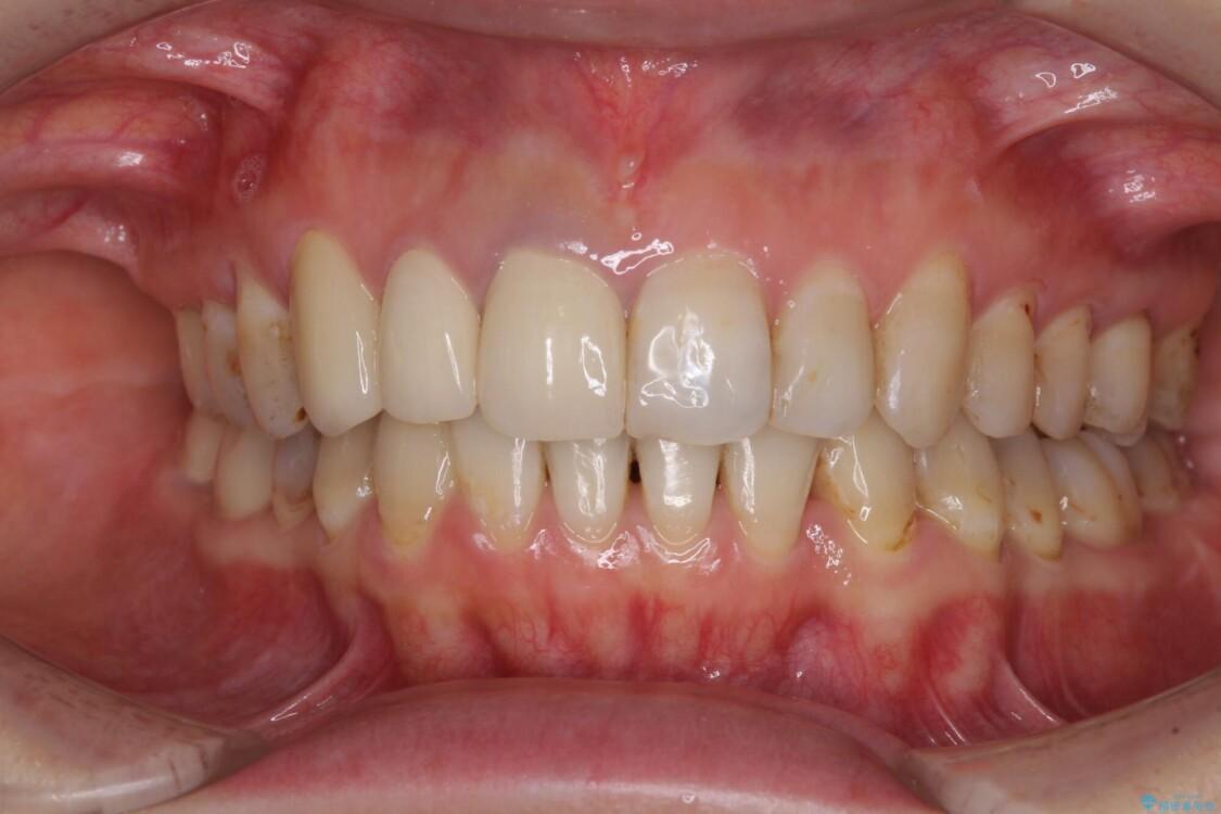 歯並びと目立つ金属を治したい 総合歯科治療 アフター