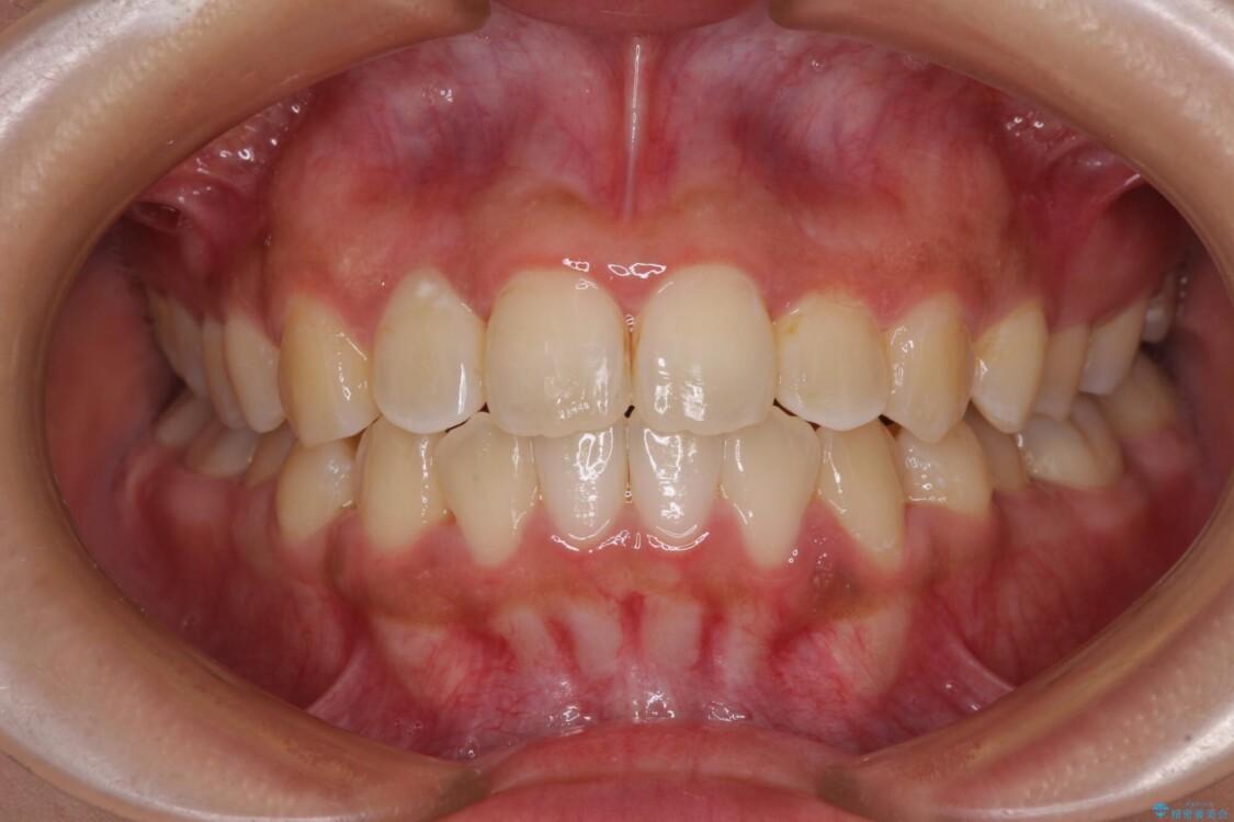 前後に重なった前歯 ワイヤー装置と急速拡大装置を併用したインビザライン矯正 アフター