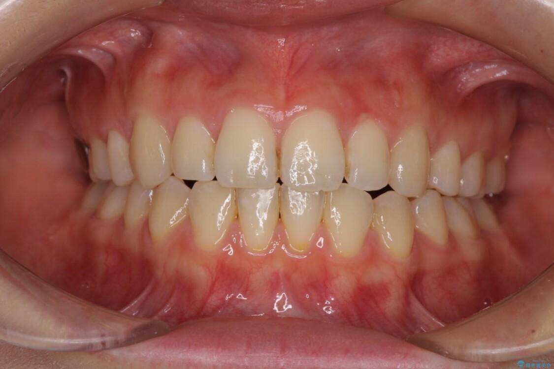 前歯2本が欠損 抜歯矯正でデコボコを治す アフター