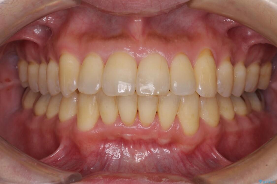 前歯のデコボコ ワイヤー装置での短期間治療 アフター