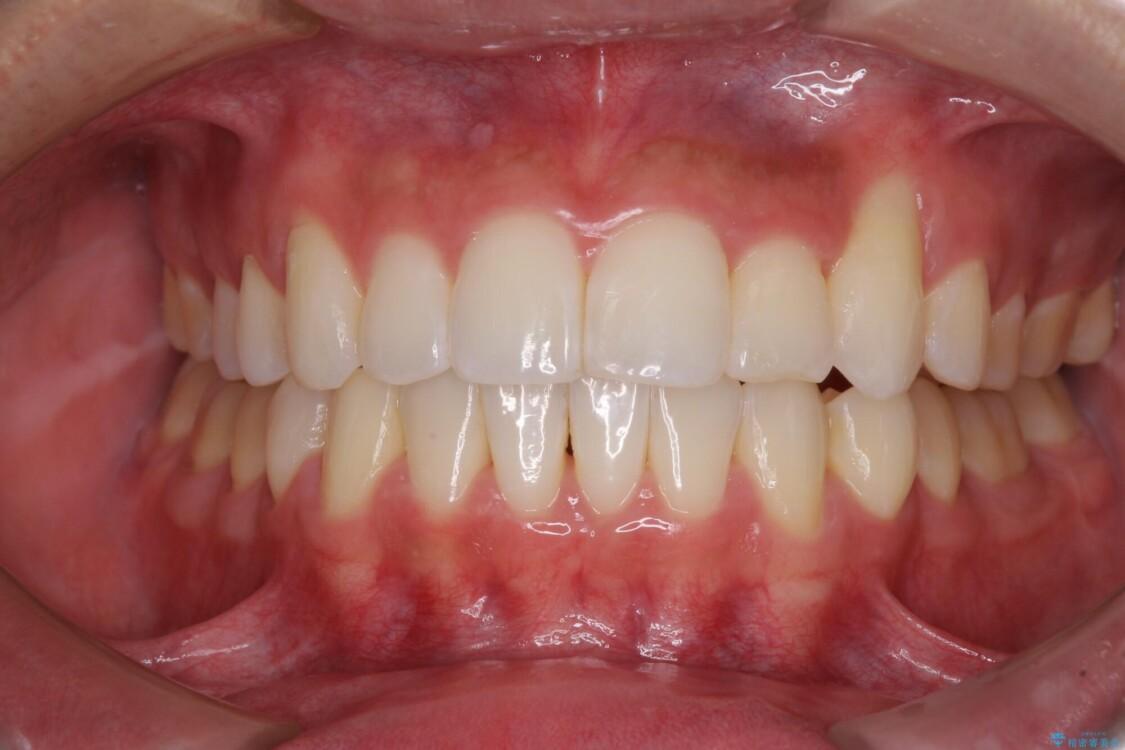 八重歯と奥歯のクロスバイト 上顎骨を拡大してインビザラインで矯正 アフター