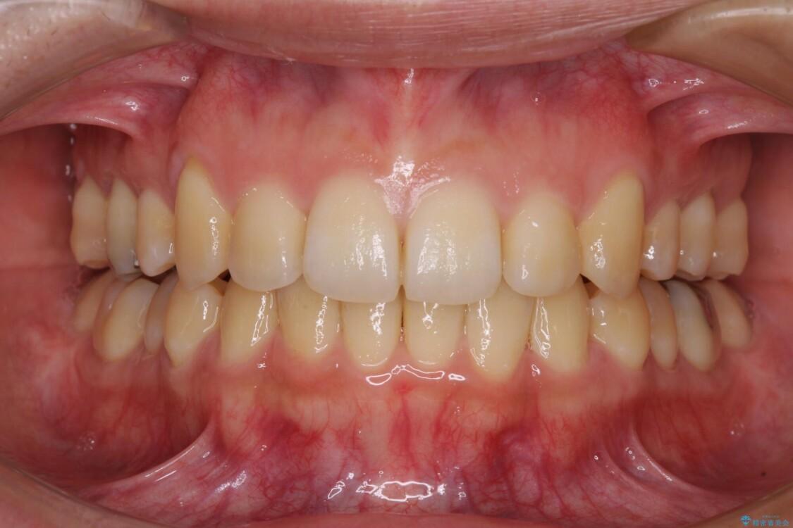 八重歯の抜歯矯正 補助装置を用いたインビザライン矯正 アフター