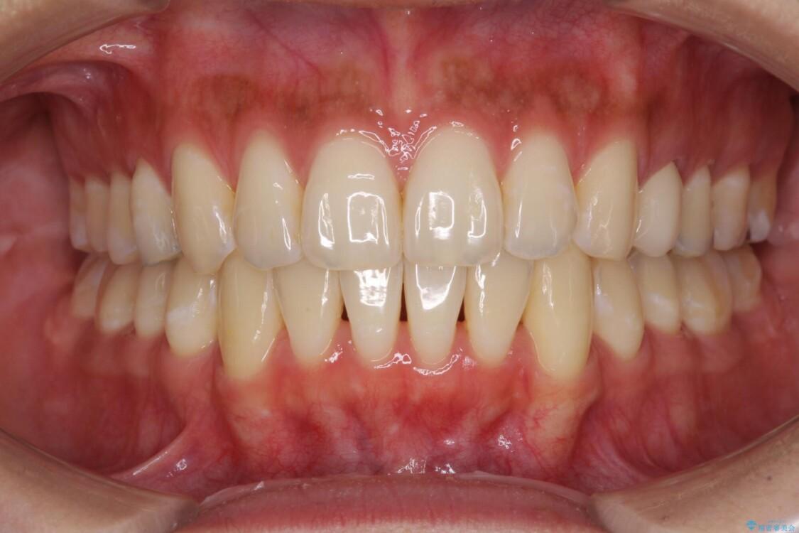 八重歯の再矯正 インビザラインでストレスなく矯正治療 アフター