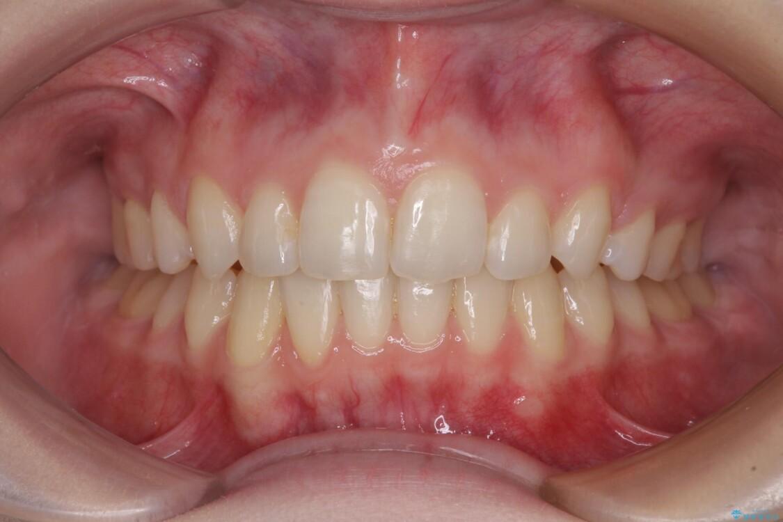 八重歯を短期間で改善 ワイヤー装置による抜歯矯正 アフター