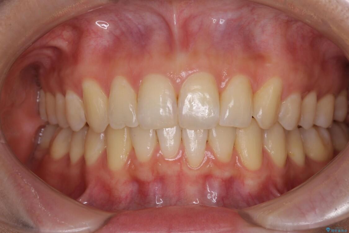 インビザラインによる矯正治療 カリエールディスタライザーを用いた奥歯の咬み合わせ改善 アフター