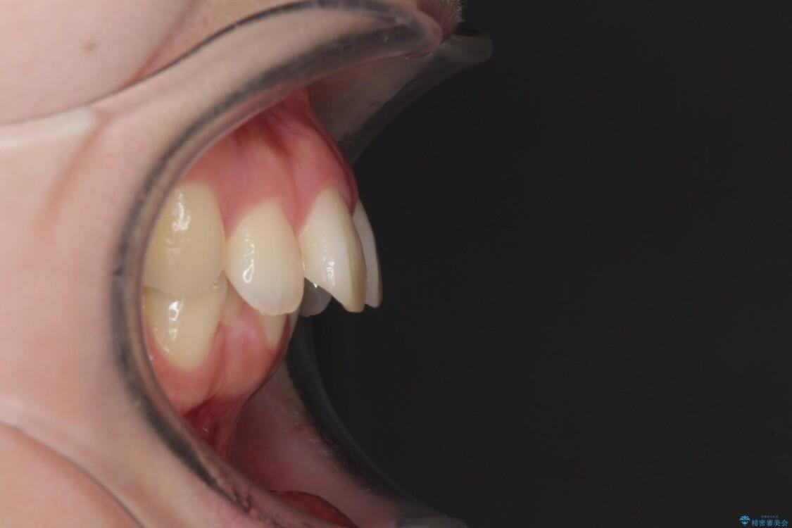 費用を抑えた抜歯矯正 口元の突出感の改善 ビフォー