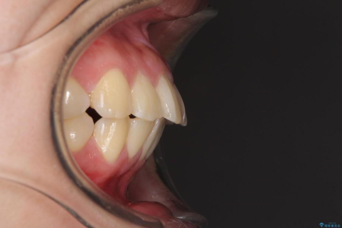 部分矯正で出っ歯になってしまった 出っ歯改善の抜歯矯正 ビフォー