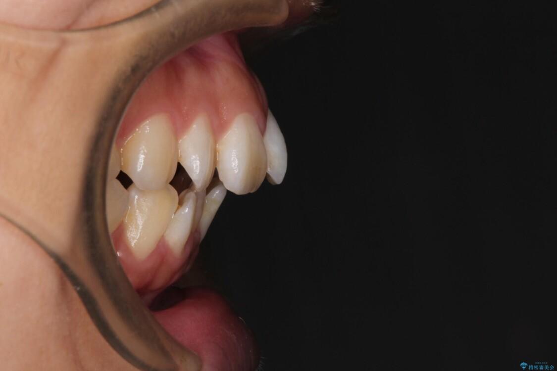 スッキリとした口元へ 出っ歯の抜歯矯正 ビフォー