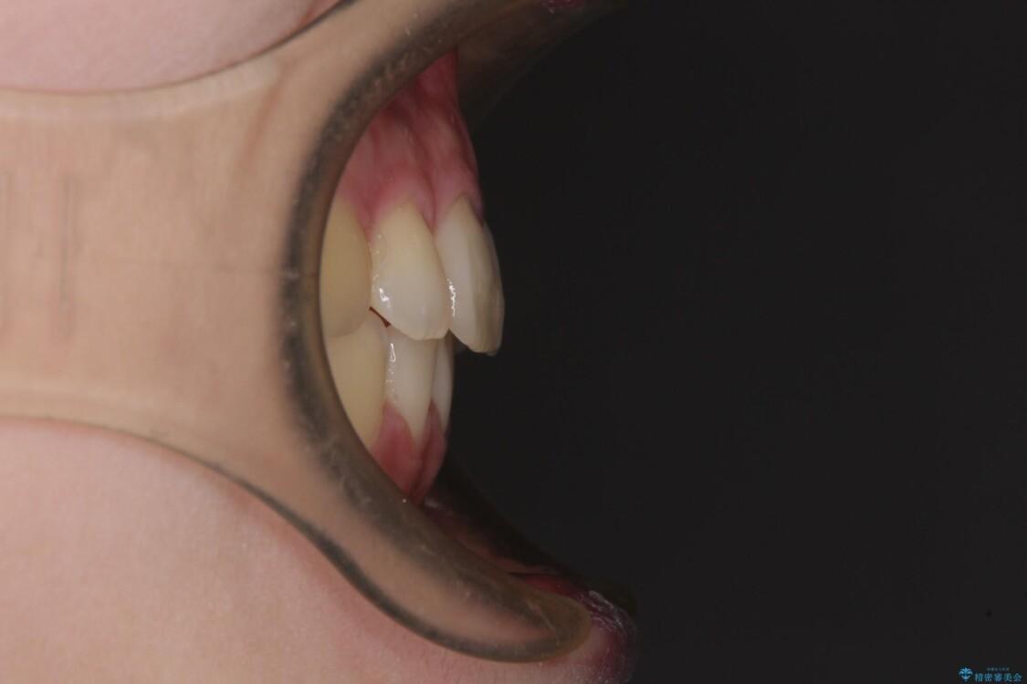 費用を抑えた抜歯矯正 口元の突出感の改善 アフター